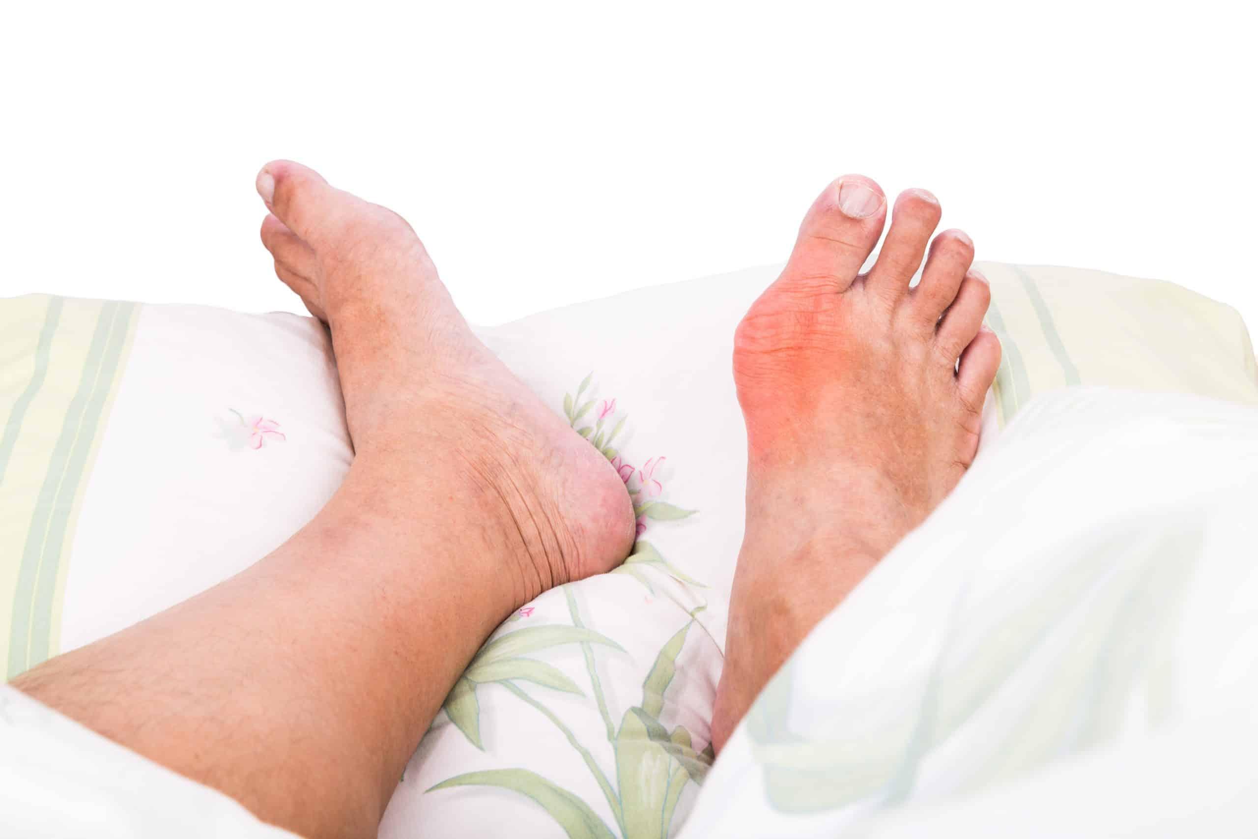 Kako smanjiti oteklinu zgloba